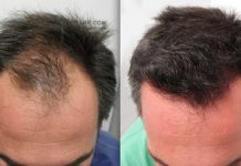 The New Natural Supplement hair loss treatment